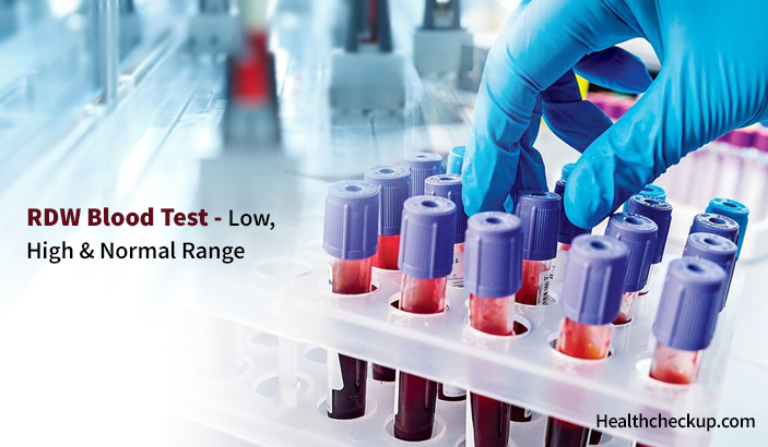 RDW Blood Test - High, Low & Normal Range