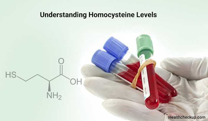 High Homocysteine Levels