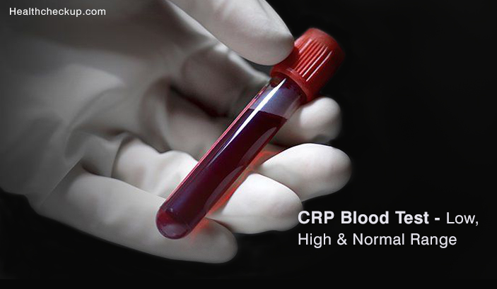CRP Blood Test - High, Low & Normal Range