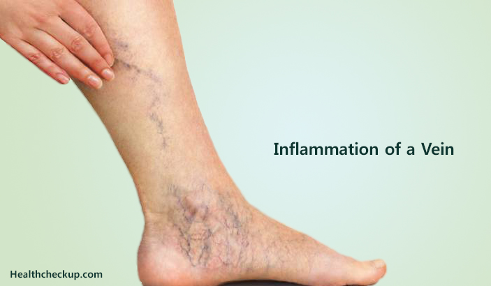 Inflammation of a Vein