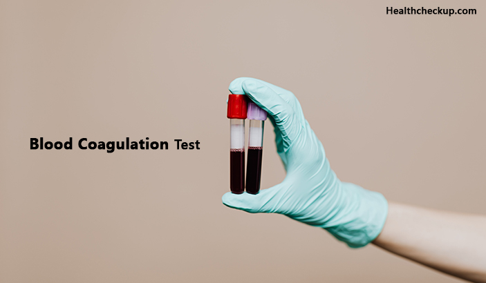 Blood coagulation test