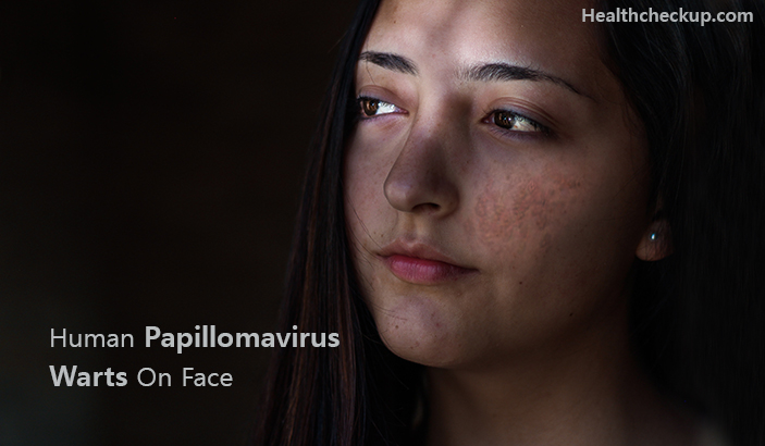 Human papillomavirus warts on face