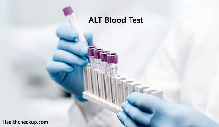 ALT Blood Test