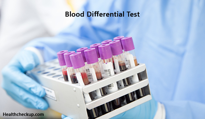 Blood Differential Test