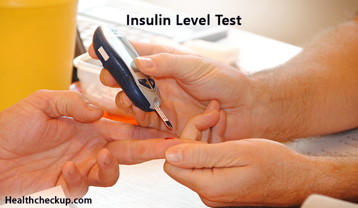Insulin Level Test