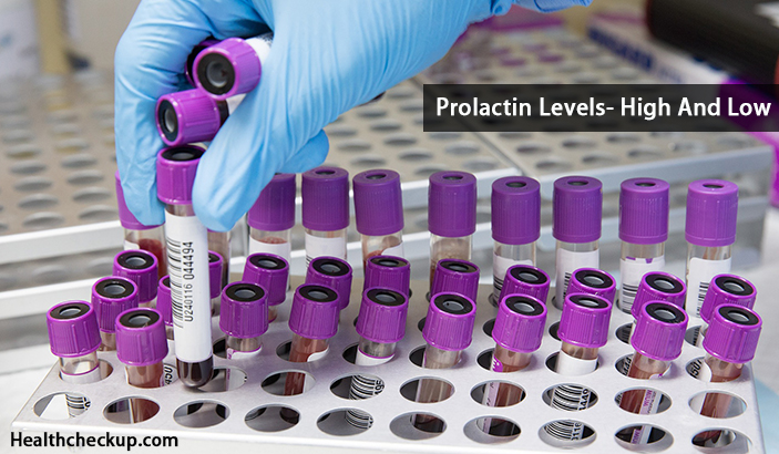 Prolactin Levels- High And Low