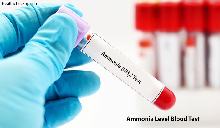 Ammonia Level Blood Test