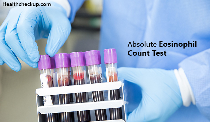 Absolute Eosinophil Count Test