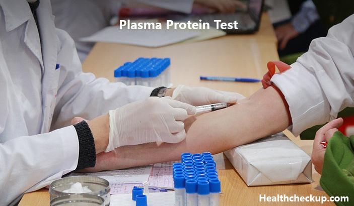 Plasma Protein Test